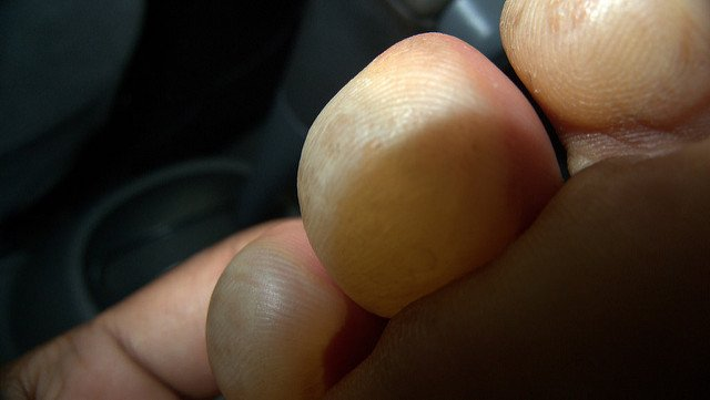Blisters on toes from burn injury